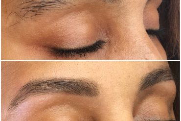What is micro needling?